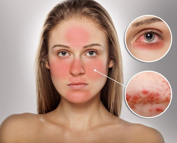 Nếu không nhanh chóng phục hồi sẽ gây các tình trạng nặng hơn: tăng tiết dầu, mụn mủ, mụn viêm, chảy dịch vàng và biến đổi cấu trúc da